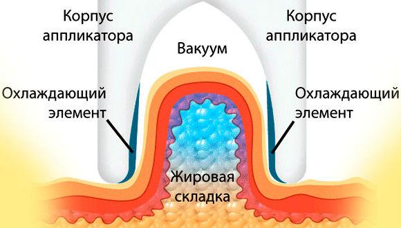 Принцип действия установки для похудения с использованием холода