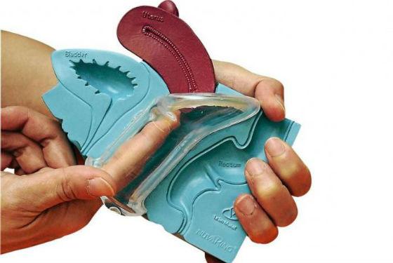 Правильная установка вагинального контрацептива