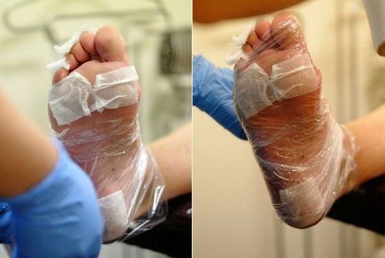 Для лучшей реакции ноги обматывают пленкой