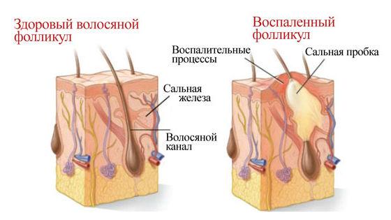 Почему образуются угри на теле
