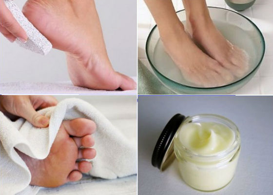 Поэтапное очищение кожи стоп