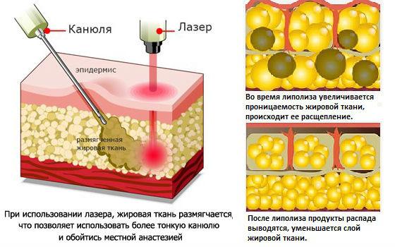 Как проводится расщепление жировой ткани лазером