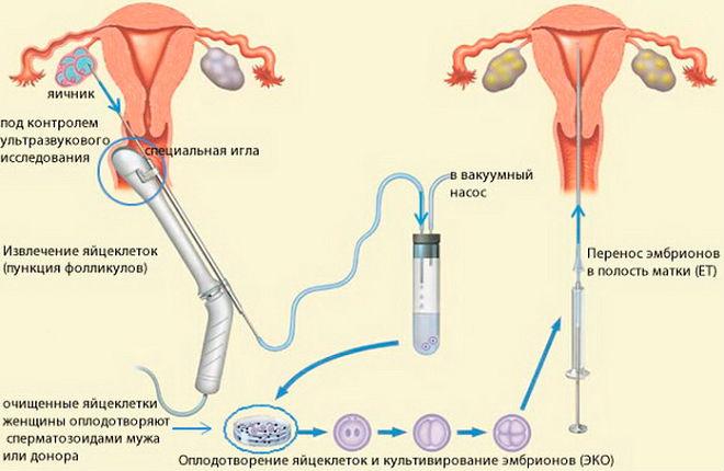 Стимулирование работы яичников часто проводят для последующего ЭКО