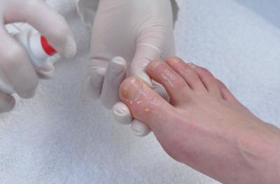 Средство для размягчения ногтей на ногах