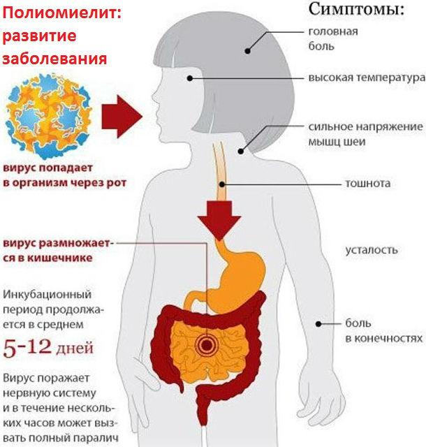 Пути заражения полиовирусом