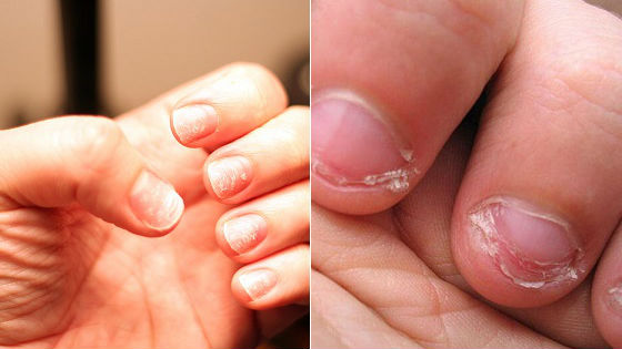 Расслоившиеся ногтевые пластины у детей на руках