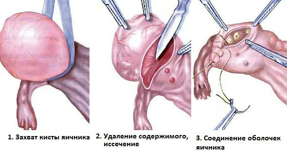 Удаление яичниковых образований