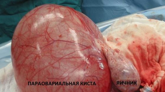 Удаленный яичник с параовариальной кистозной полостью