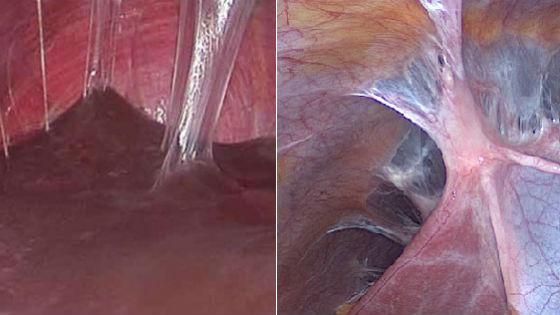 Спаечный процесс тканей труб матки