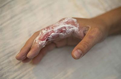 Препараты от ожоговых поражений кожи