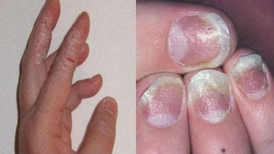 Грибковое поражение кожи и ногтей