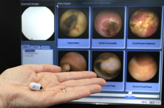 Капсульная колоноскопия для диагностики непроходимости кишечника