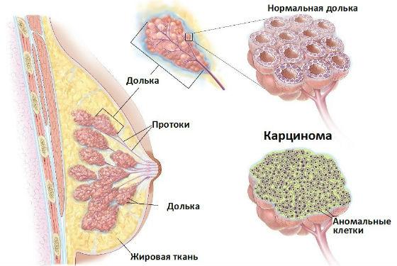 Дольковая, или лобулярная карцинома