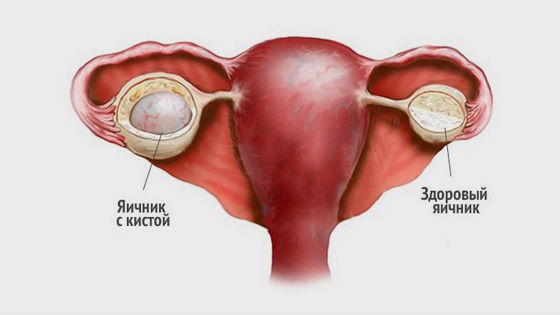 Физиопроцедуры при кисте яичника 1