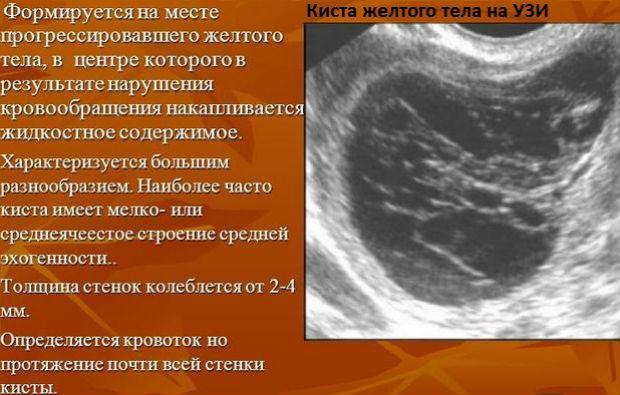 Затемнение на УЗИ при кисте желтого тела