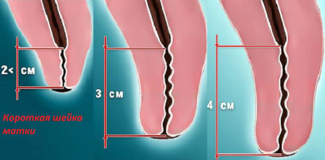 Как выглядит укороченный шеечный канал
