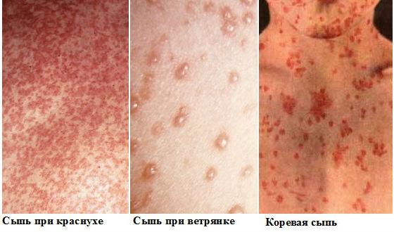 Отличие коревой сыпи от других заболеваний