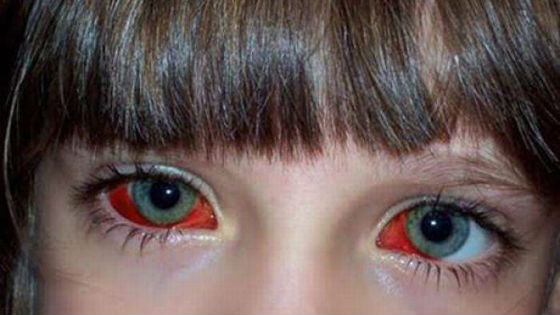 После приступа кашля часто происходит кровоизлияние в глаза