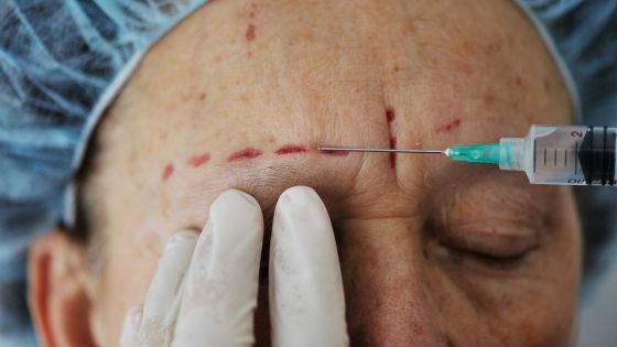 Побочные эффекты от инъекций в виде кровоподтеков