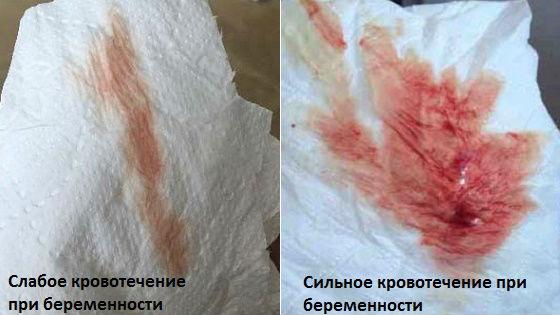 Слабое и сильное кровотечение у беременных женщин