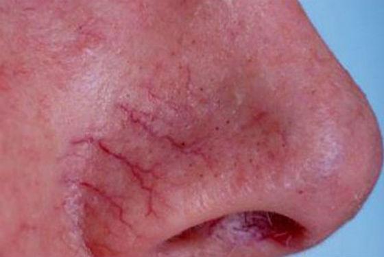 Воспаленные сосуды на носу