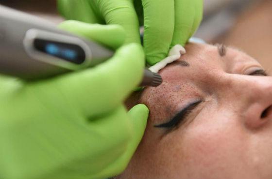 Лазерная подтяжка кожи вокруг глаз