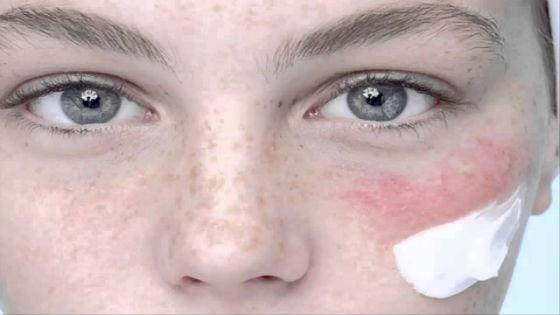 Устранение симптомов специальными мазями