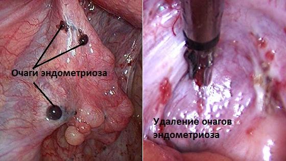 Очаги эндометриоидной ткани на яичниках