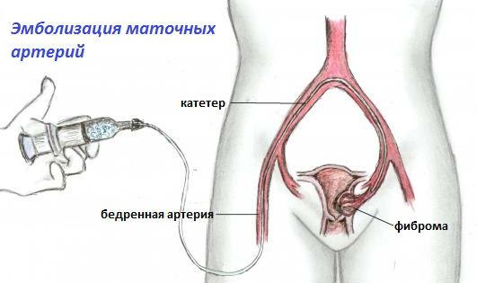 Эмболизация маточных артерий для лечения фибромы