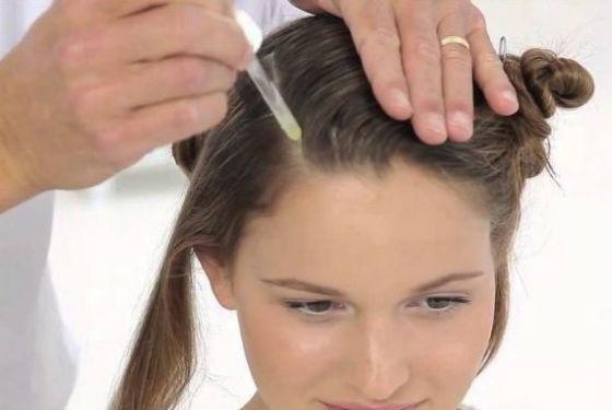 Лечение болезненности кожи головы медикаментозными препаратами