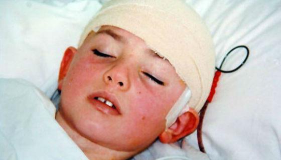 Головные боли при воспалении оболочек мозга