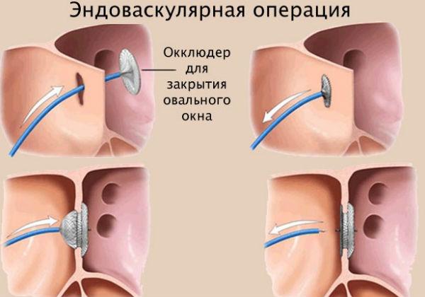 Оперативное лечение дефектов межпредсердной перегородки