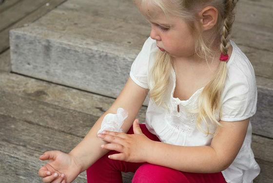 Лечение псориатических бляшек приносит облегчение