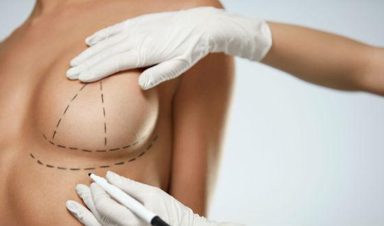 Опущение груди бывает не только у пожилых, но и у молодых