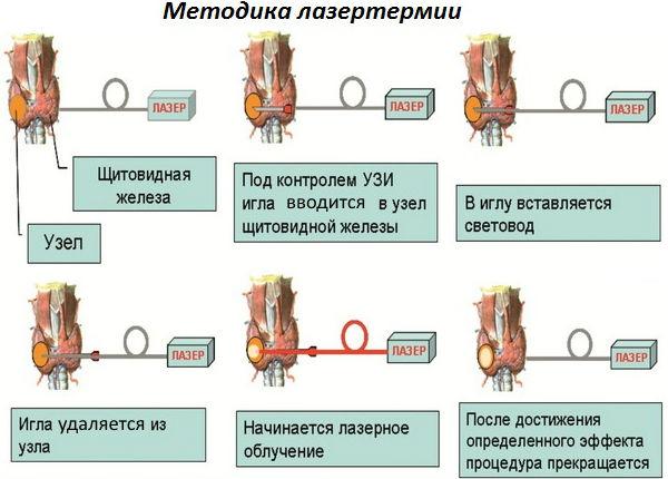 Один из видов лечения опухолей щитовидки