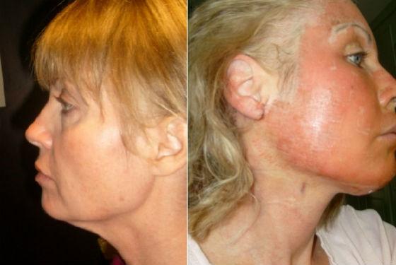 Заживление кожи после омолаживающей процедуры