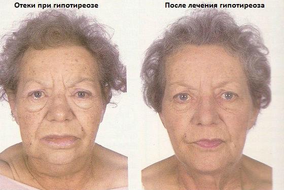 Отеки на лице при нехватке тиреоидных гормонов
