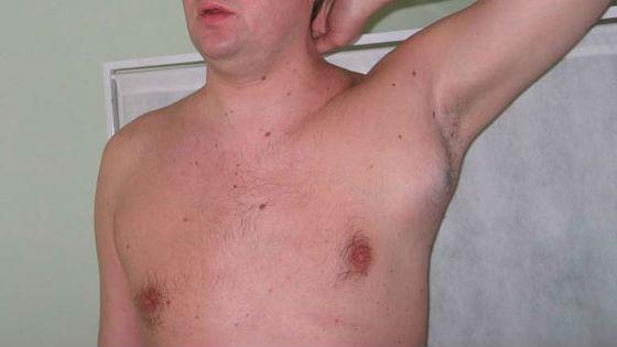 Болезненные ощущения из-за лимфаденопатии