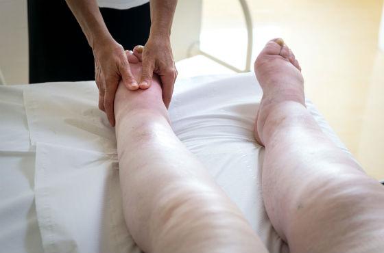 Отекание ступней и голеней из-за нарушения лимфооттока