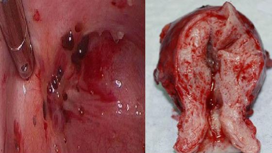 Пораженная эндометриозом матка