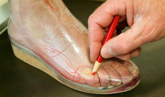 Снятие мерок для изготовления ортопедической обуви