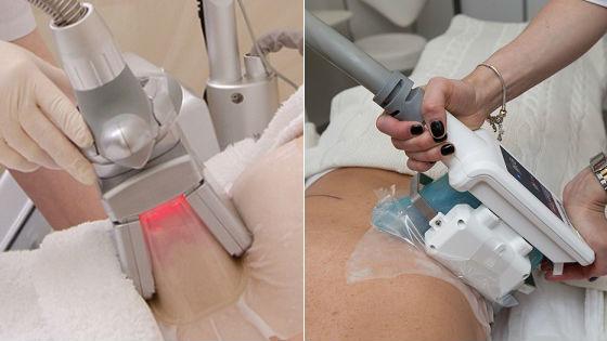 Виды аппаратов для проведения процедуры похудения при помощи холода