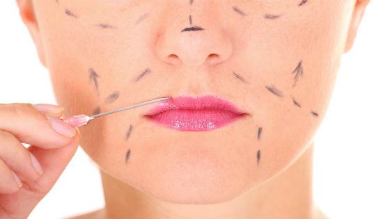 Коррекция контуров лица при помощи уколов красоты