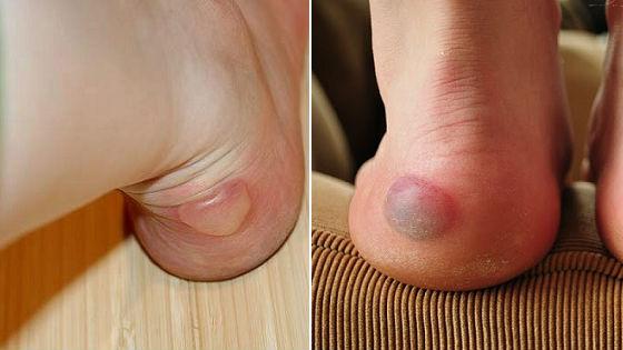 Обычные мокрые и кровяные мозолистые образования на стопах ног