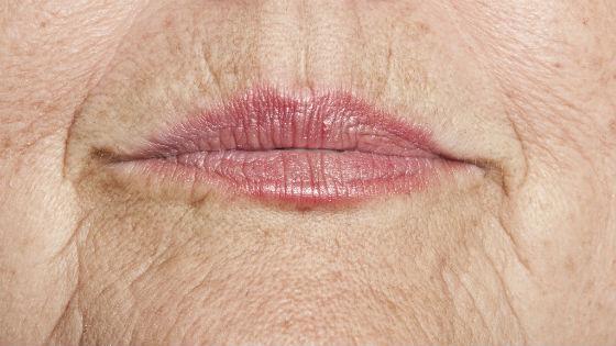 Как выглядят морщинки вокруг губ