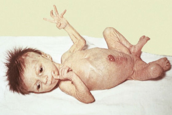 Характерные для заболевания изменения во внешности для новорожденного