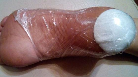 Народные способы размягчения огрубевшей кожи ног