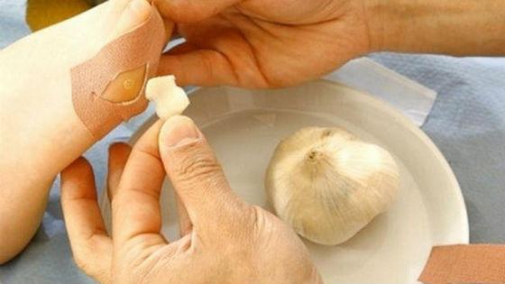 Использование чеснока от мозолей и подошвенных бородавок