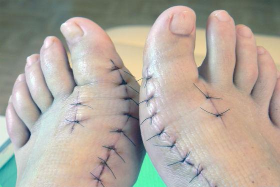 Ступни после хирургической коррекции деформированного сустава