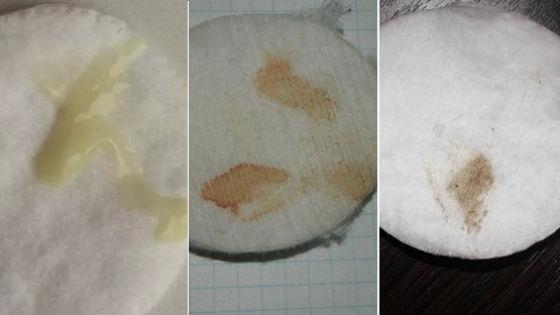 Какие бывают бели перед менструацией